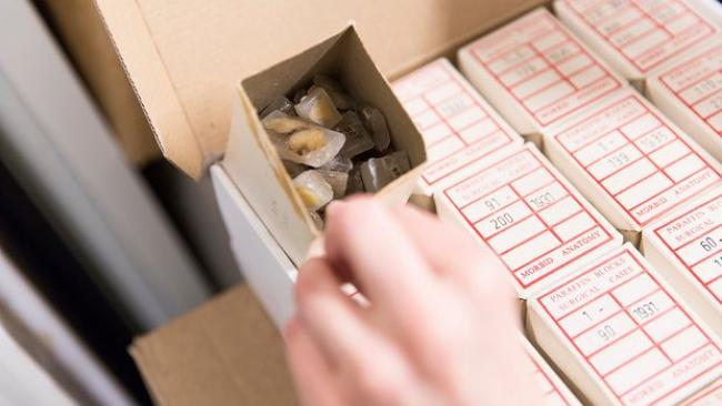 Boxes containing old tumours preserved in paraffin wax. Photograph: John Stead